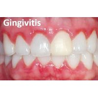 Atención Dental Clínica UVM